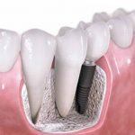 Имплантация зубов с использованием зарубежных систем